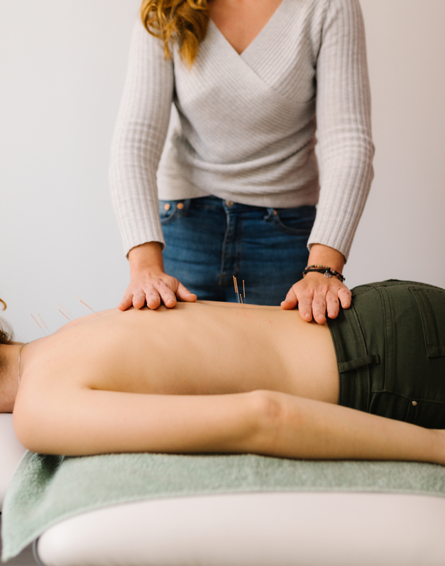 Benefits of Functional Medicine and Acupuncture as Complimentary Care